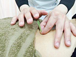 札幌市西区琴似 てて整骨院二十四軒店の鍼灸治療