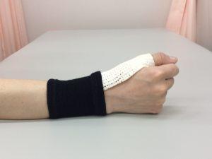 腱鞘炎治療 専用装具|札幌西区琴似 てて整骨院