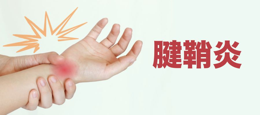 腱鞘炎の治療なら|札幌西区琴似 てて整骨院